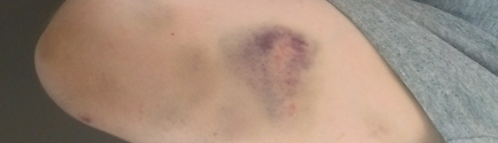Bruise from tight cave